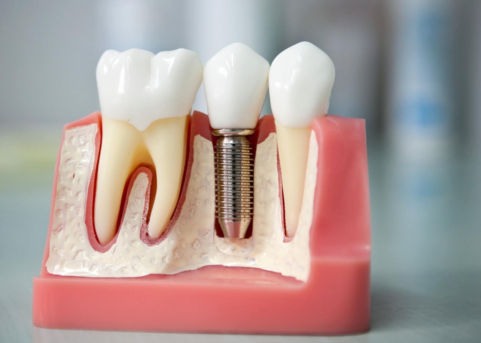 Что входит в понятие имплантация зубов под ключ?