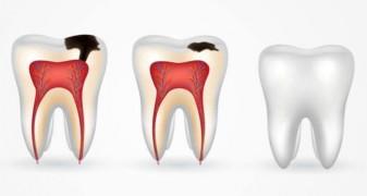 Как производится лечение кариеса зубов?