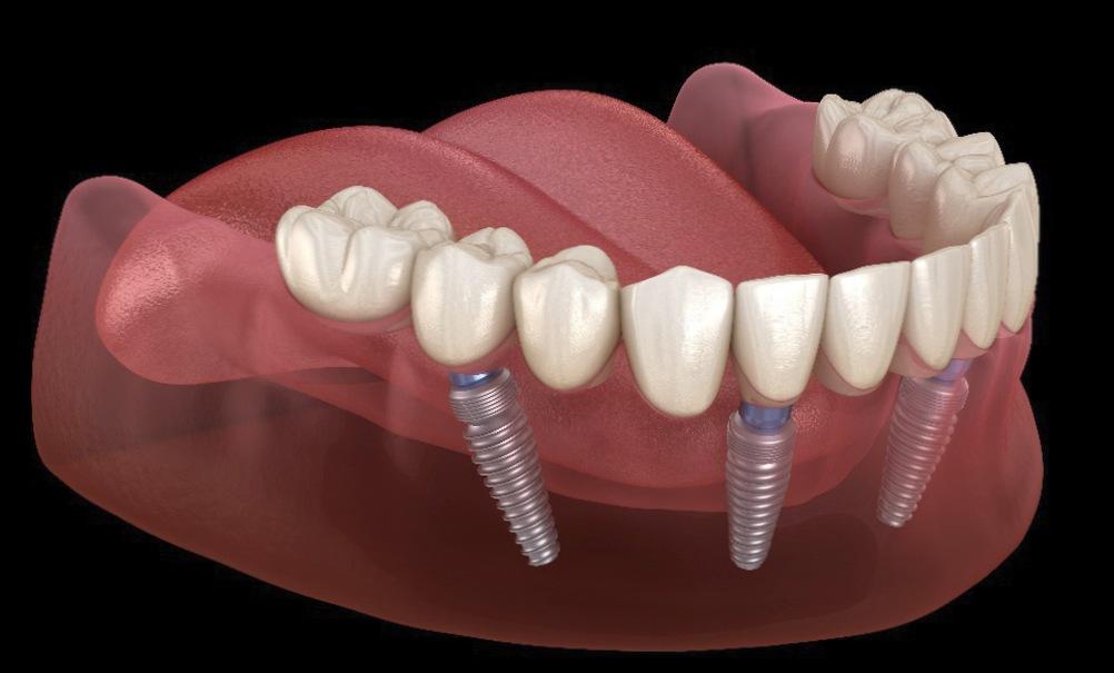 Как восстановить утраченный зубной ряд?